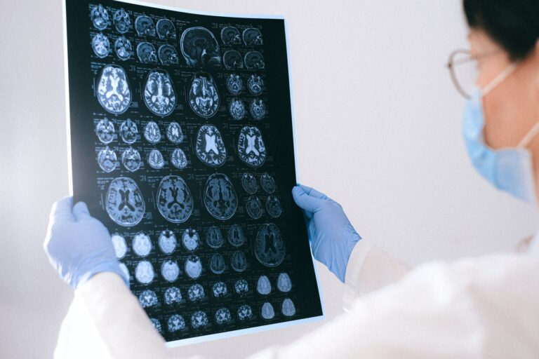 Cortexyme (CRTX) could solve Alzheimer's Disease